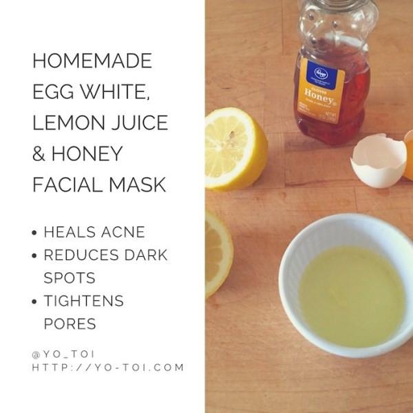 DIY Acne Mask  Egg White Lemon Juice & Honey Facial Mask for Acne Scars