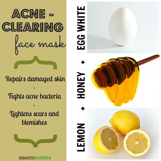 DIY Acne Mask  17 Best ideas about Homemade Acne Mask on Pinterest