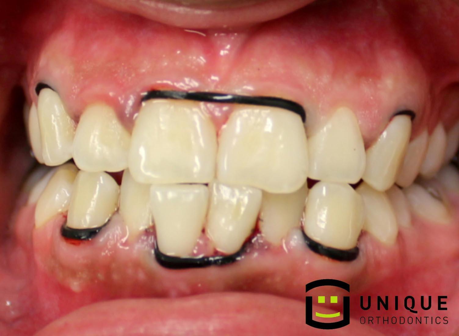 Best ideas about DIY Braces Kit . Save or Pin Diy Teeth Straightening Kit Uk Clublifeglobal Now.