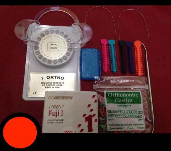Best ideas about DIY Braces Kit . Save or Pin A word on DIY Braces Now.