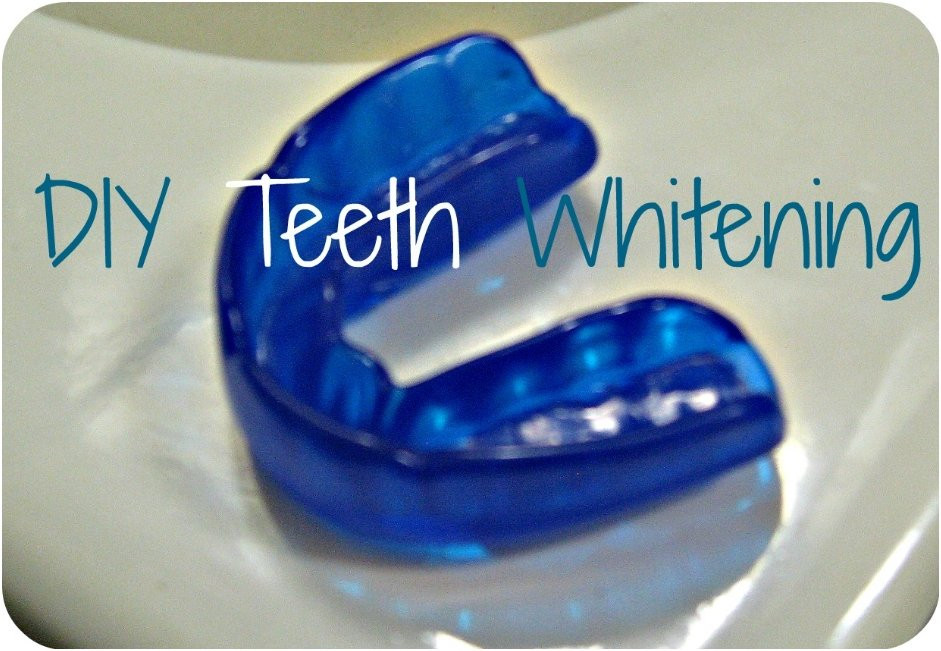 Best ideas about DIY Braces Kit . Save or Pin 10 Easy And Effective Recipes For Whitening Your Teeth At Home Now.