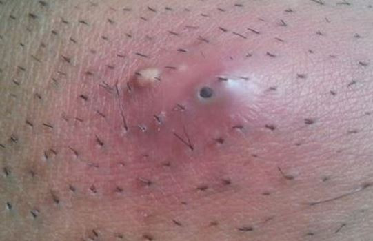 Female Pubic Hairstyles  Flea Bites vs Bed Bug Bites Difference How to