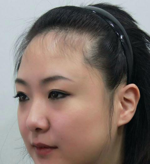 Hairstyles For Receding Hairline Female  home improvement Hairstyles for receding hairline female