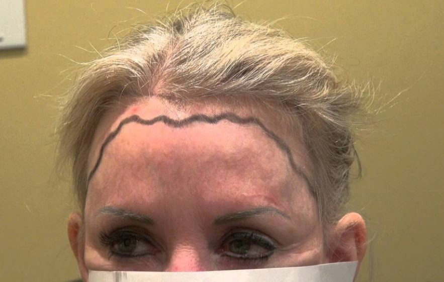 Hairstyles For Receding Hairline Female  Receding Hairline in Women Causes and Best Treatments