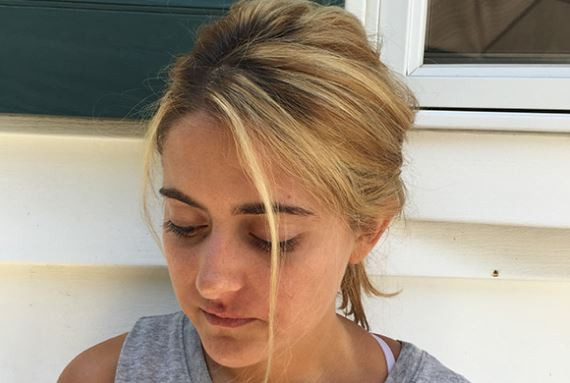 Hairstyles For Receding Hairline Female  Receding Hairline in Women Causes Treatment Young Black