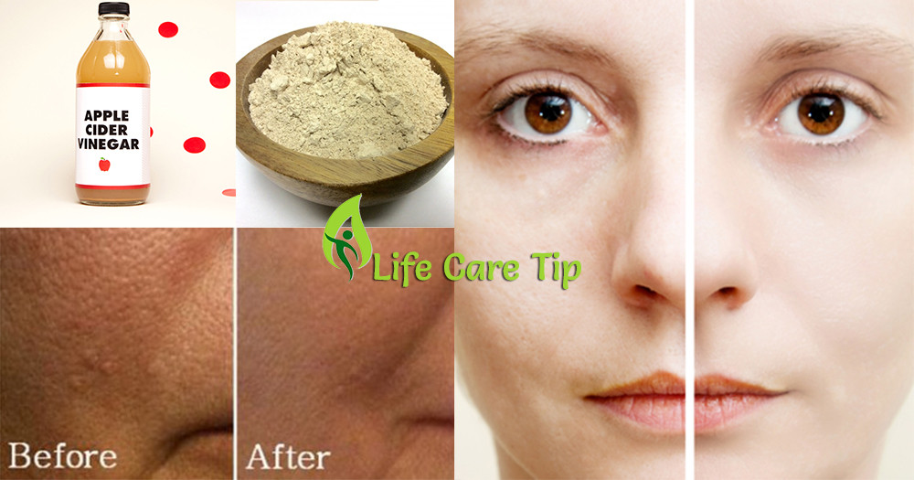 Pore Shrinking Mask DIY  Pore Closing Mask Diy Diy Virtual Fretboard