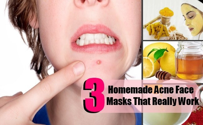 Best ideas about Best DIY Acne Mask . Save or Pin 3 DIY Homemade Acne Face Masks That Really Work Now.