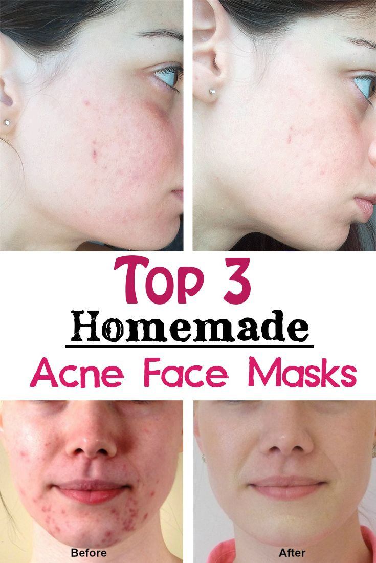 Best ideas about Best DIY Acne Mask . Save or Pin Top 3 Homemade Acne Face Masks Now.