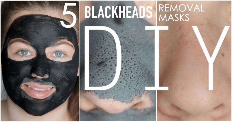 Best ideas about Best Face Mask For Blackhead Removal DIY . Save or Pin Get Rid Blackheads In 5 Minutes Applying This Mask Now.