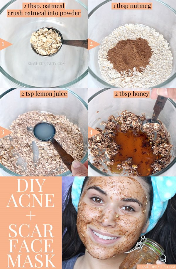 Best ideas about DIY Acne Scar Mask . Save or Pin Best DIY Face Mask for Acne & Acne Scars Honey & Nutmeg Now.