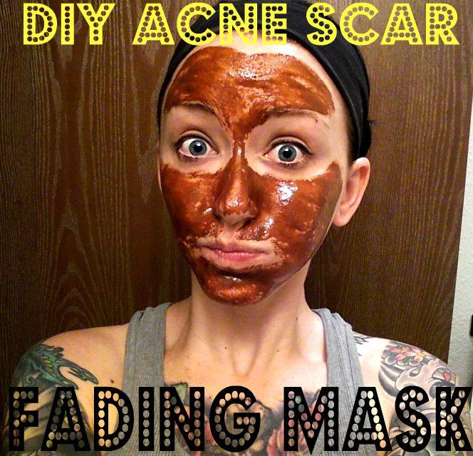 Best ideas about DIY Acne Scar Mask . Save or Pin 290 best DIY Beauty & Eco friendly Alternatives images on Now.
