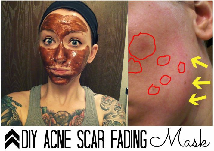Best ideas about DIY Acne Scar Mask . Save or Pin The Busy Bee DIY Acne Scar Mask Now.