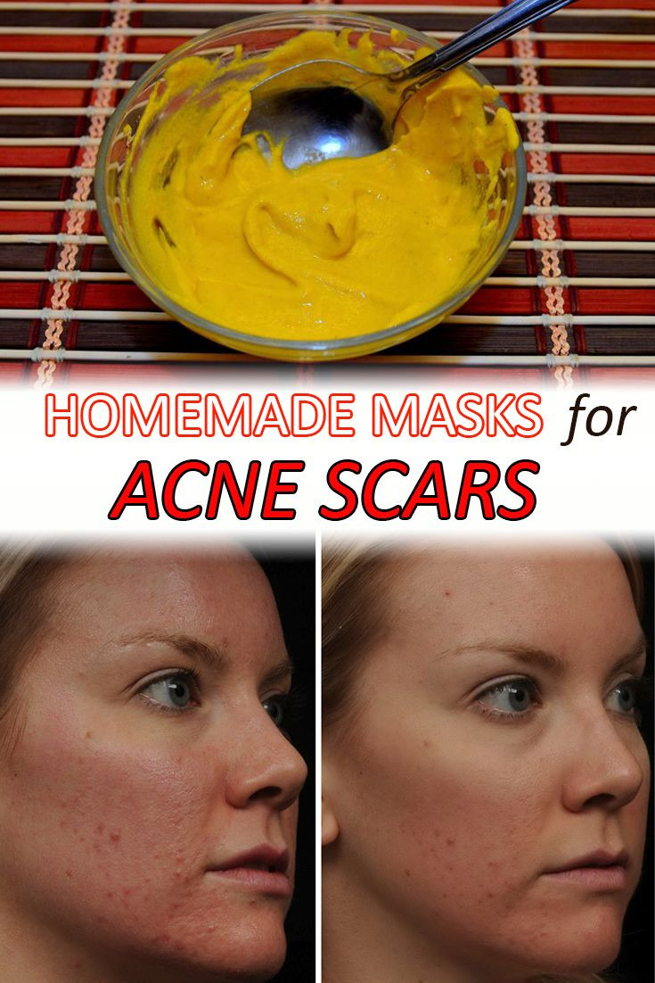 Best ideas about DIY Acne Scar Mask . Save or Pin 407 best DIY Beauty Tips and Tricks images on Pinterest Now.