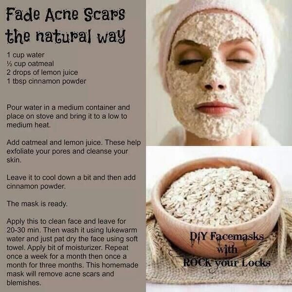 Best ideas about DIY Acne Scar Mask . Save or Pin DIY acne scar mask I ll give it a try Now.