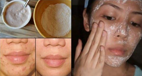 Best ideas about DIY Acne Scar Mask . Save or Pin homemade face mask for acne scar Archives I Love Home Now.