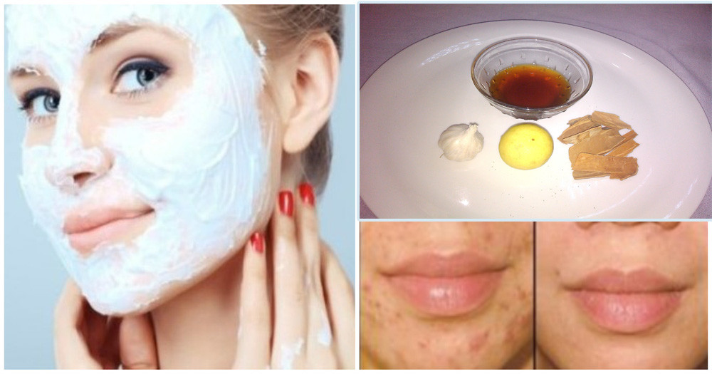 Best ideas about DIY Face Mask To Get Rid Of Acne . Save or Pin The Most Effective Homemade Face Mask for Treating Acne Now.