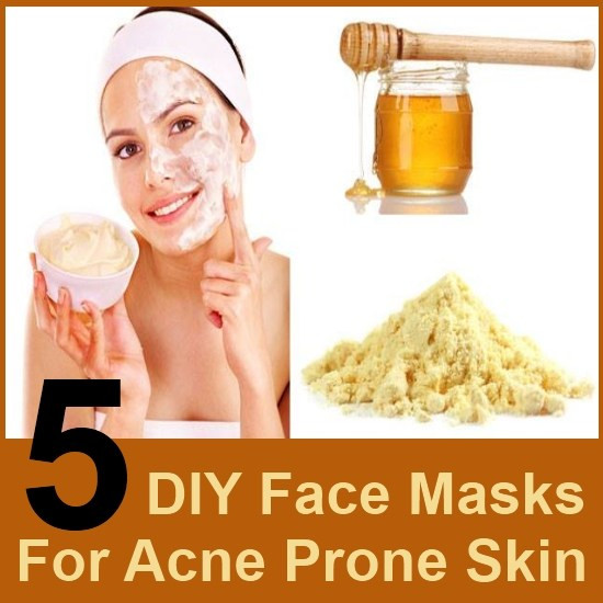Best ideas about DIY Face Mask To Get Rid Of Acne . Save or Pin 5 DIY Face Masks For Acne Prone Skin Now.