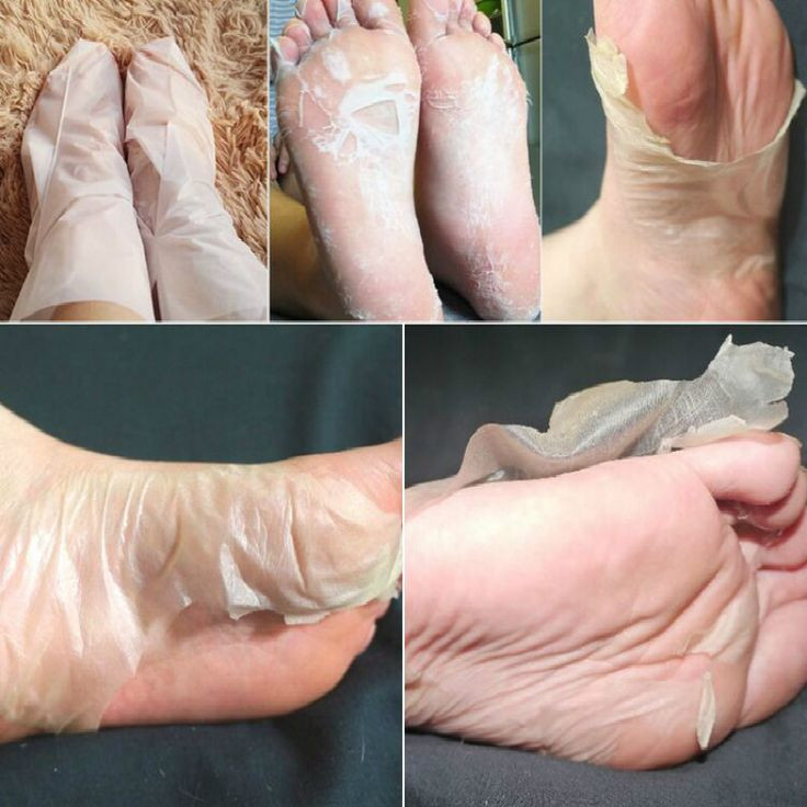 Best ideas about Baby Foot Peel DIY . Save or Pin Best 25 Foot peel ideas on Pinterest Now.