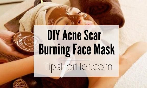 Best ideas about DIY Face Mask For Acne Scars . Save or Pin 1116 best images about Acne Skin Challenges on Pinterest Now.
