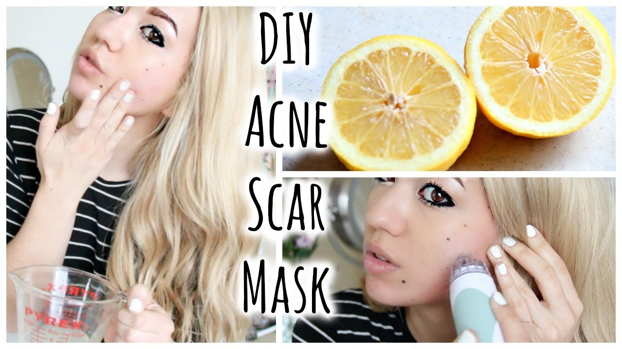 Best ideas about DIY Face Mask For Acne Scars . Save or Pin DIY Acne Scar Fading Mask Quick Acne Tips Now.