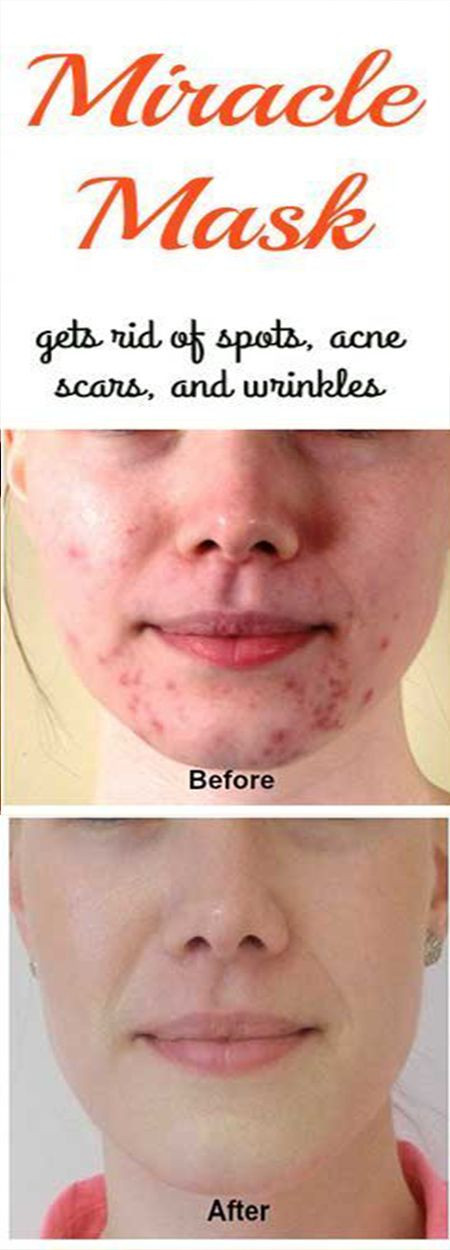 Best ideas about DIY Face Mask For Acne Scars . Save or Pin 8 best Skin care images on Pinterest Now.