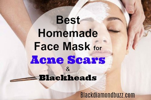 Best ideas about DIY Face Mask For Acne Scars . Save or Pin DIY Face Mask for Acne 7 Best Homemade Face Masks Now.