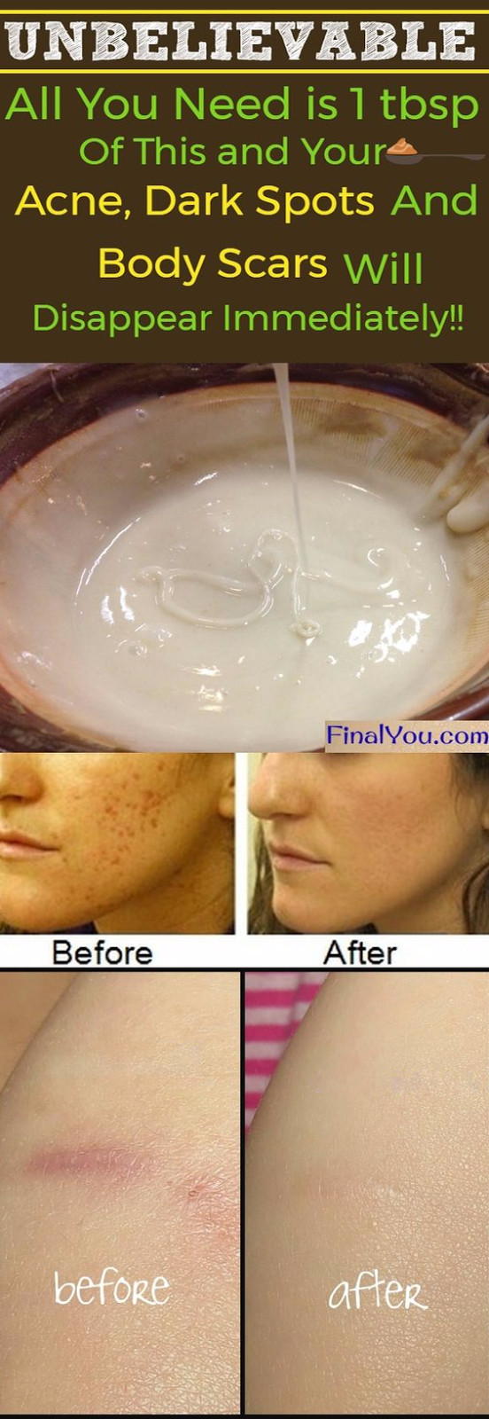 Best ideas about DIY Face Mask For Acne Scars . Save or Pin UNBELIEVABLE HOMEMADE FACE MASK TO GET RID OF SPOTS Now.