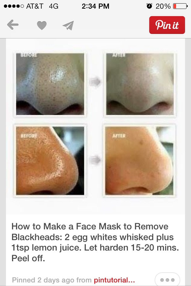 Best ideas about DIY Face Mask To Remove Blackheads . Save or Pin This Face Mask Can Remove Black Heads Now.