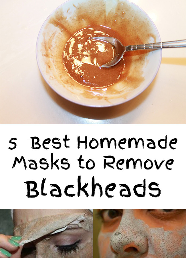 Best ideas about DIY Face Mask To Remove Blackheads . Save or Pin Remove Blackheads 5 Best Homemade Masks To Remove Blackheads Now.