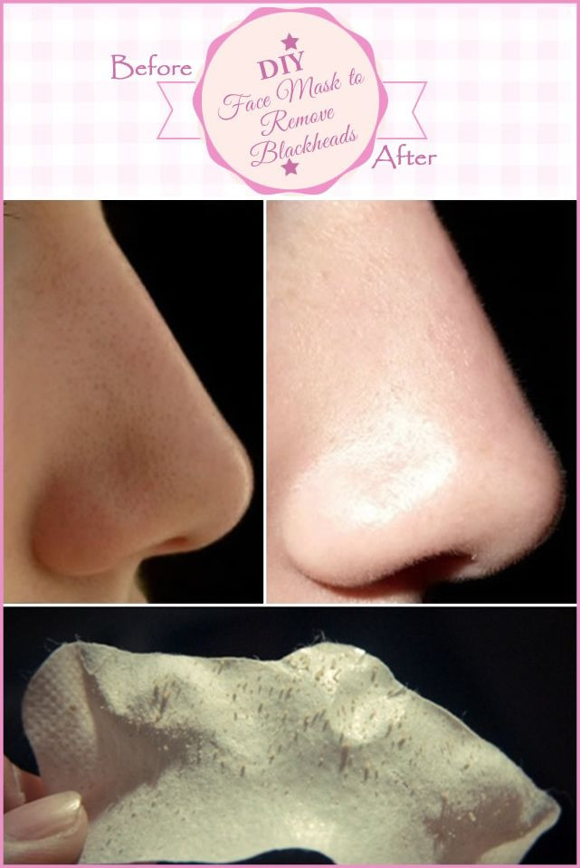 Best ideas about DIY Face Mask To Remove Blackheads . Save or Pin DIY Face Mask to Remove Blackheads DIYskincare Now.