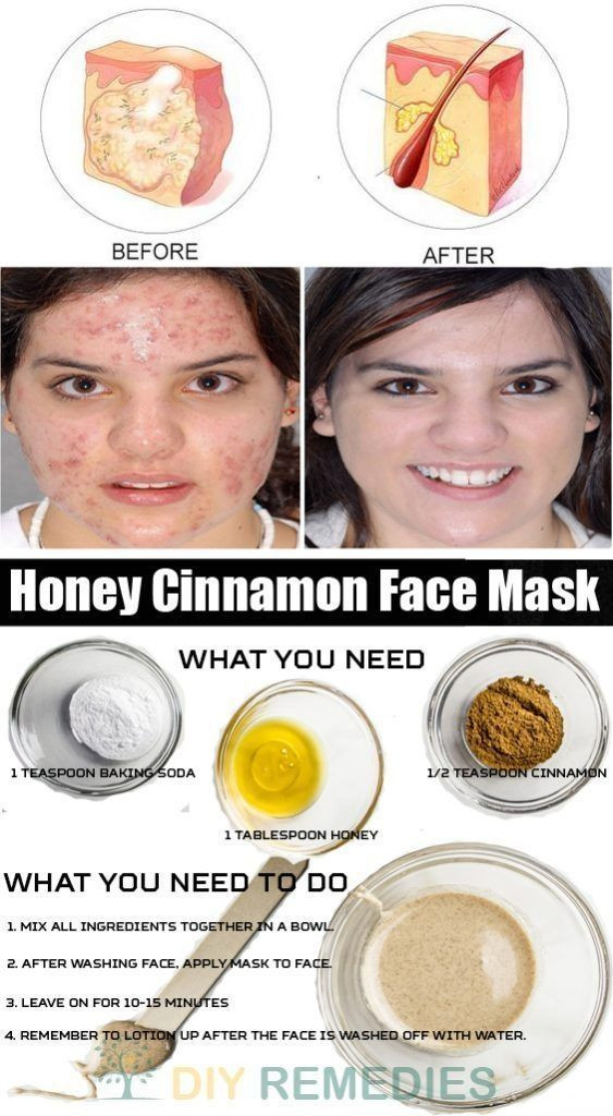 Best ideas about DIY Face Mask Without Honey . Save or Pin 25 best ideas about Honey cinnamon mask on Pinterest Now.
