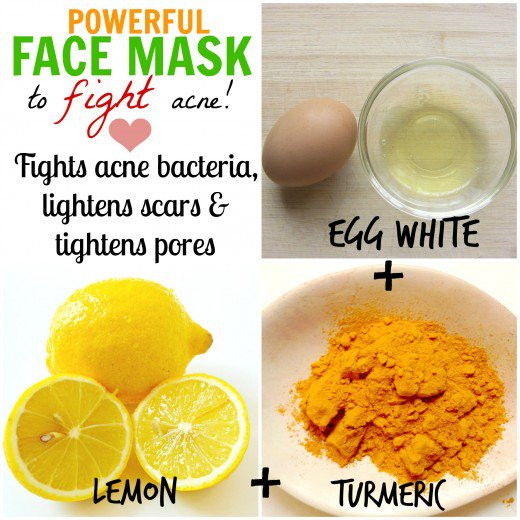 Best ideas about DIY Face Masks For Acne . Save or Pin DIY Natural Homemade Face Masks for Acne Cure Now.