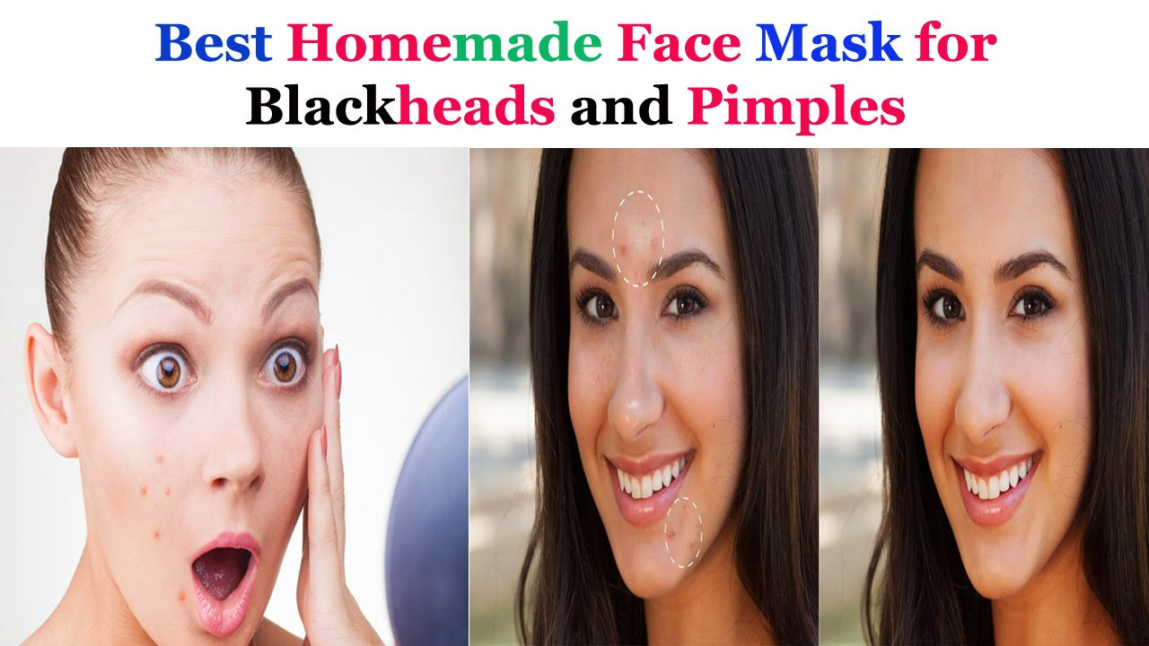 Best ideas about DIY Face Masks For Blackheads . Save or Pin Best Homemade Face mask for Blackheads and Pimples Now.