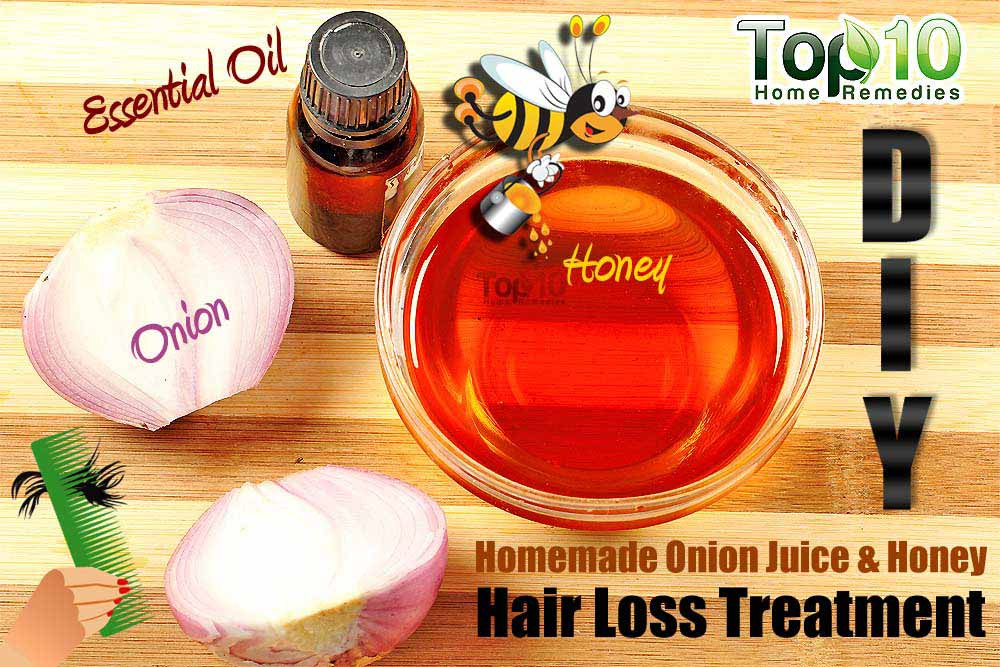Best ideas about DIY Hair Growth Treatments . Save or Pin Homemade Remedy to Reduce Hair Loss Using ion Juice Now.