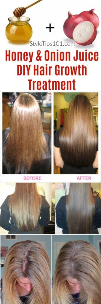 Best ideas about DIY Hair Growth Treatments . Save or Pin ion Juice & Honey DIY Hair Growth Treatment Now.