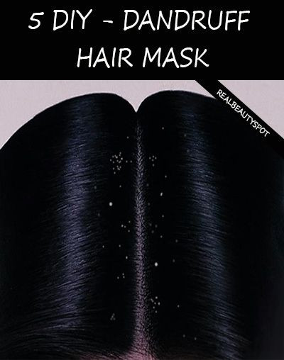 Best ideas about DIY Hair Mask For Dandruff . Save or Pin 112 best images about Beauty DIY s on Pinterest Now.