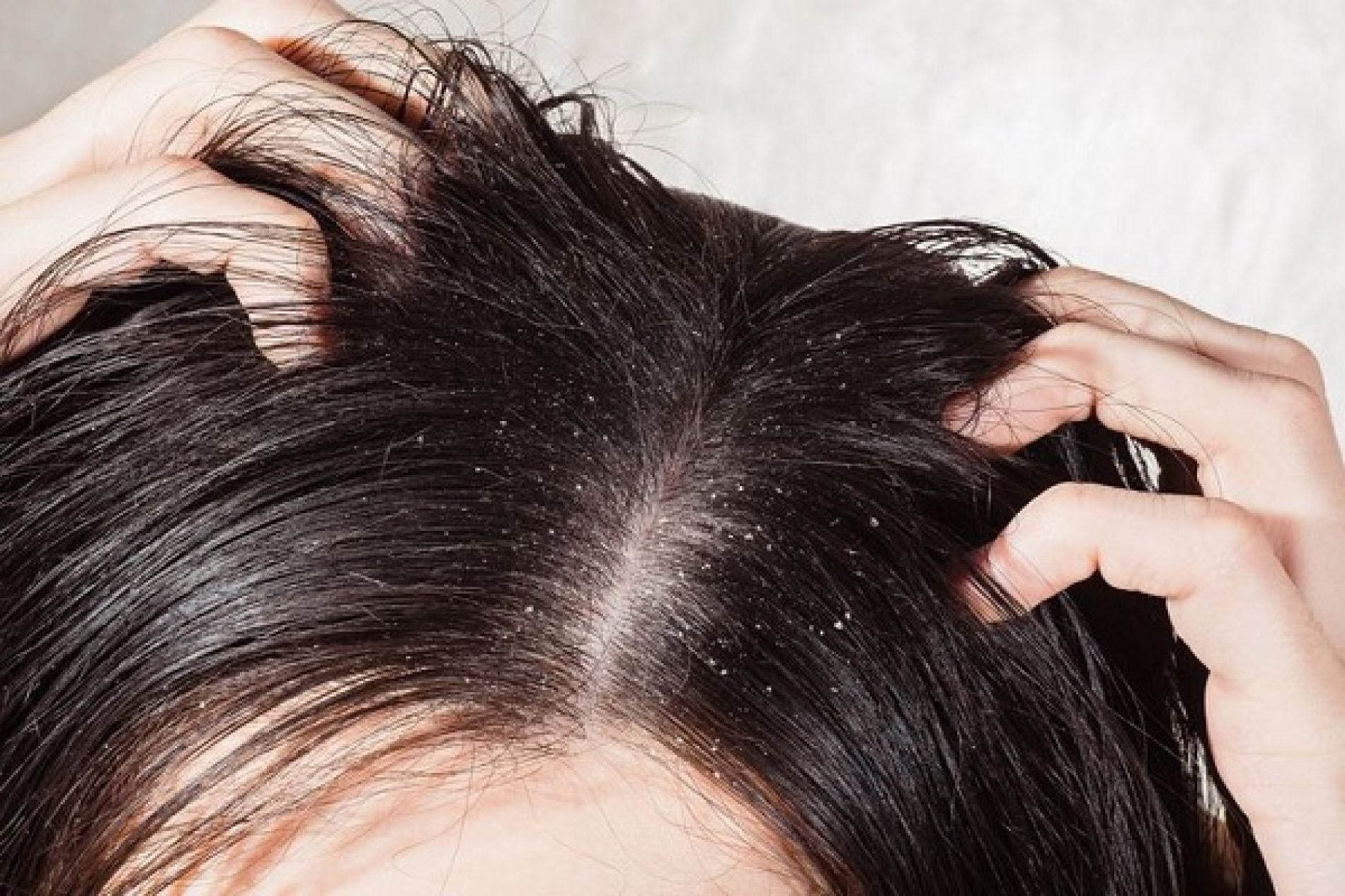 Best ideas about DIY Hair Mask For Dandruff . Save or Pin Homemade Hair Masks for Dandruff Get Rid of Dandruff Now.