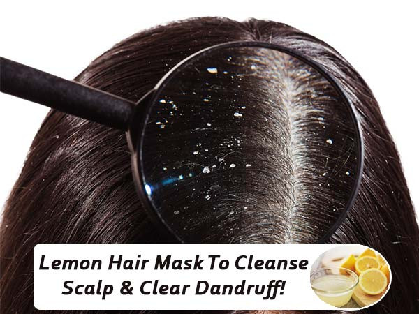 Best ideas about DIY Hair Mask For Dandruff . Save or Pin Lemon Hair Mask To Cleanse Scalp & Clear Dandruff Now.