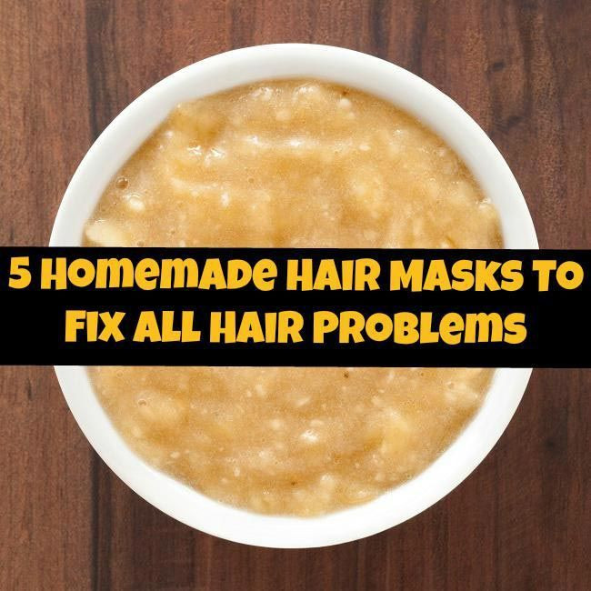 Best ideas about DIY Hair Mask For Dandruff . Save or Pin 5 Homemade Hair Masks To Fix All Hair Problems Now.