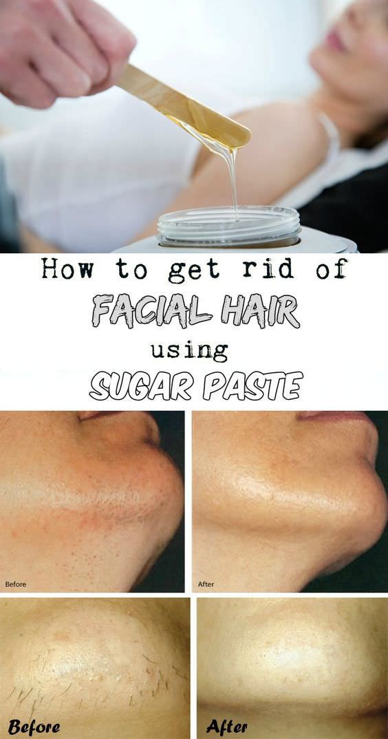 Best ideas about DIY Hair Removal Cream . Save or Pin Best 25 Facial hair ideas on Pinterest Now.