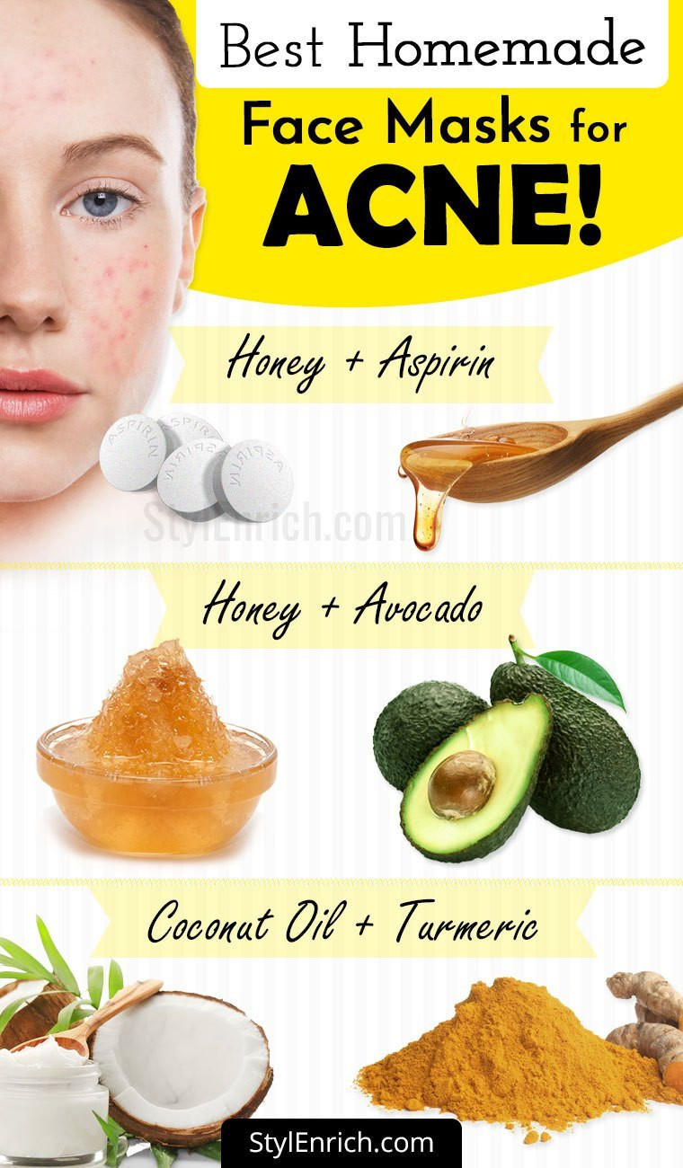 Best ideas about Good Face Masks For Acne DIY . Save or Pin Homemade Face Mask For Acne Treatment At Home Now.