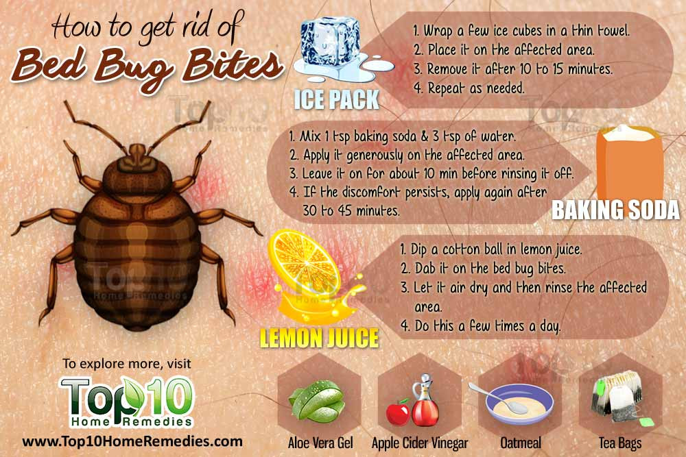 Best ideas about How To Get Rid Of Bed Bugs DIY . Save or Pin How to Get Rid of Bed Bug Bites Page 2 of 3 Now.