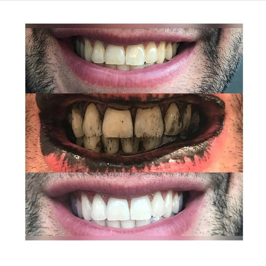 Best ideas about Charcoal Teeth Whitening DIY . Save or Pin Teeth Whitening Charcoal Power – Sonoma Essentials Now.