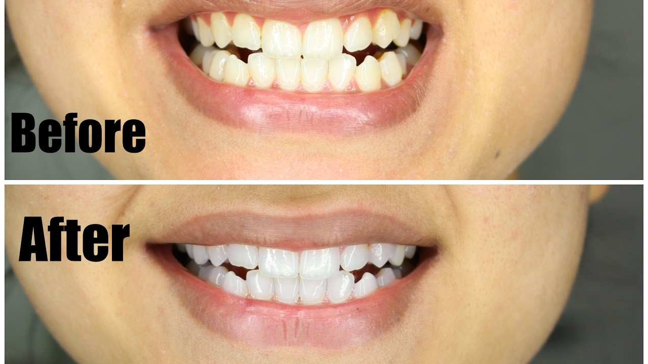 Best ideas about Charcoal Teeth Whitening DIY . Save or Pin WHITEN TEETH IN 1 USE DIY NATURAL Charcoal Teeth Now.