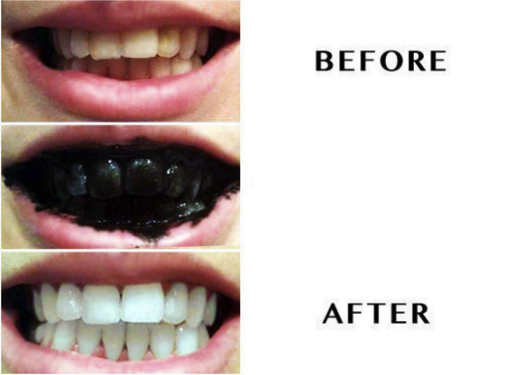 Best ideas about Charcoal Teeth Whitening DIY . Save or Pin Natural Charcoal Teeth Whitening Powder 30g Now.