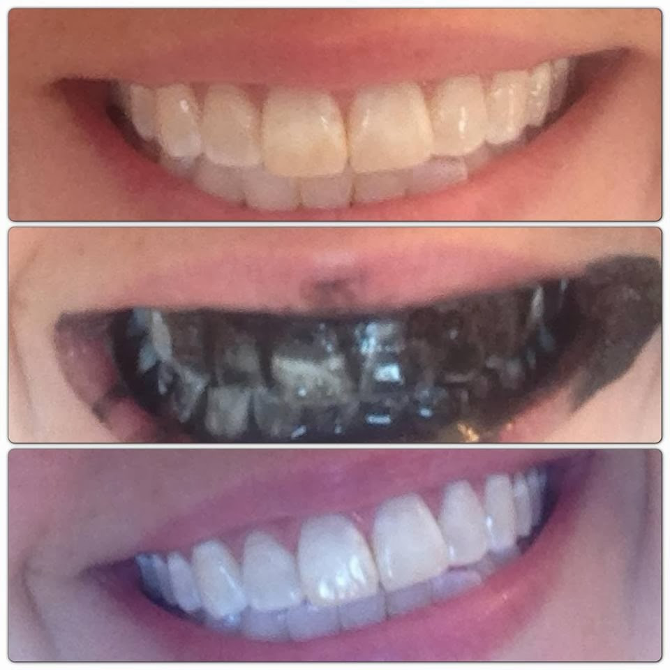Best ideas about Charcoal Teeth Whitening DIY . Save or Pin Retreat at Cross Mountain Apartments San Antonio TX Now.