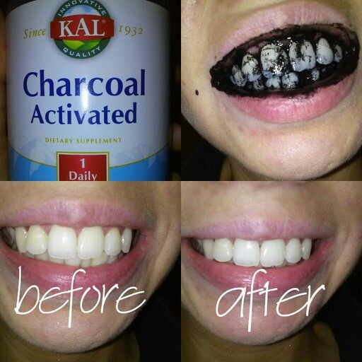 Best ideas about Charcoal Teeth Whitening DIY . Save or Pin Diy teeth whitening with activated charcoal und this on Now.