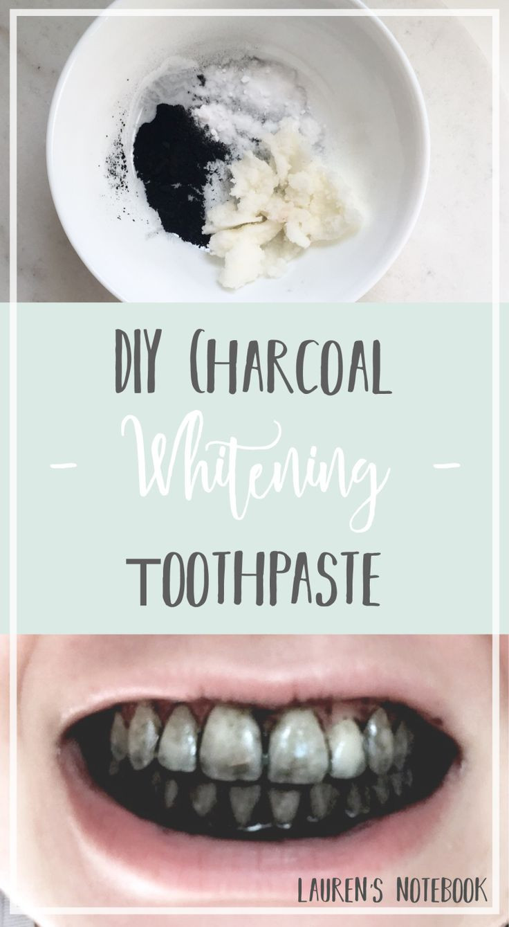 Best ideas about Charcoal Teeth Whitening DIY . Save or Pin 25 best ideas about Charcoal teeth whitening on Pinterest Now.