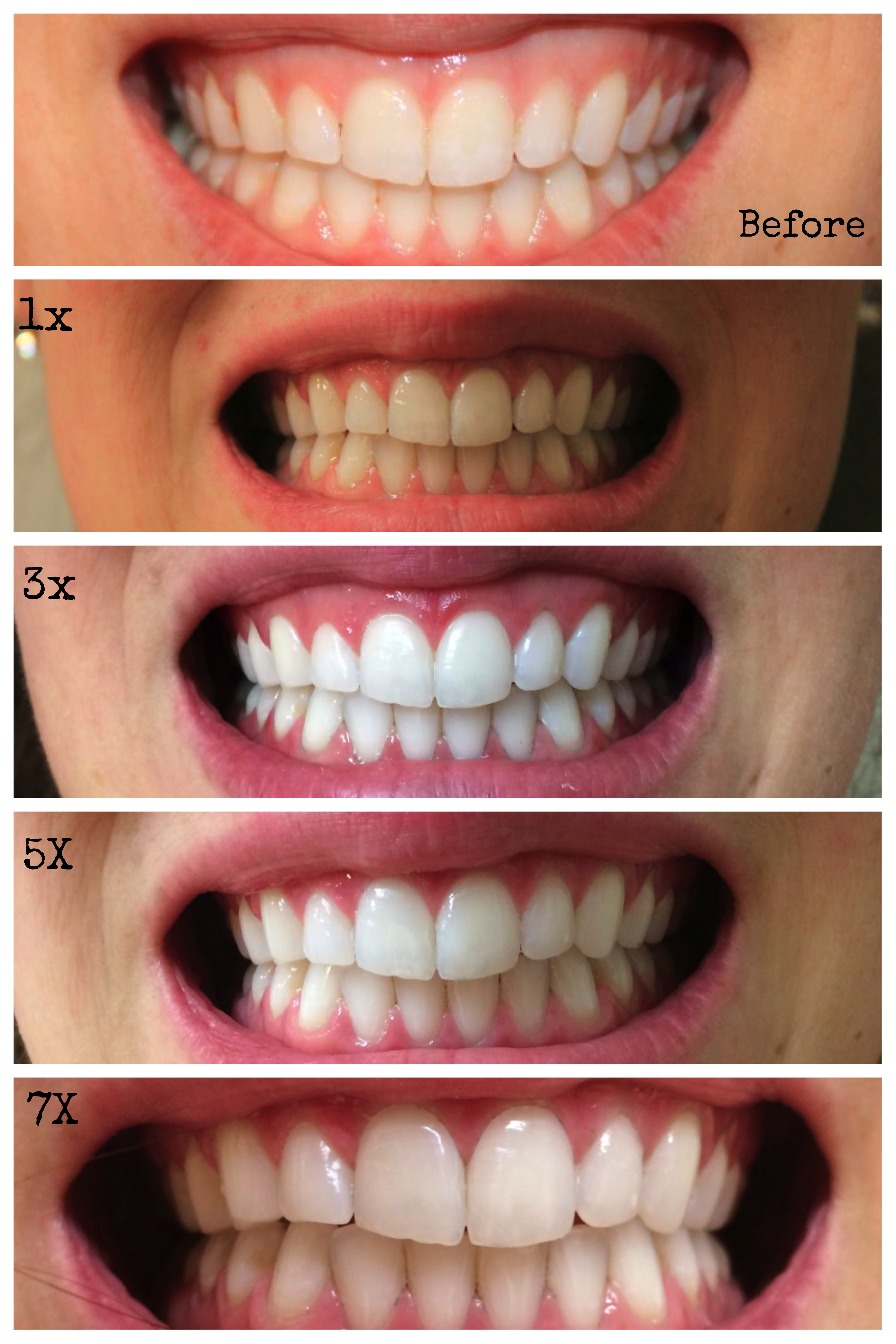 Best ideas about Charcoal Teeth Whitening DIY . Save or Pin DIY Teeth Whitening Now.