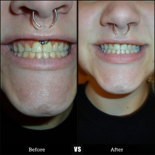 Best ideas about Charcoal Teeth Whitening DIY . Save or Pin Just naturally whitening my teeth… Now.